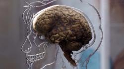 Ученые из США хотят оживить мозг мертвого человека