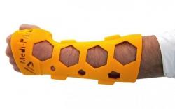 Пластиковый NovaCast может заменить традиционные гипсовые повязки.