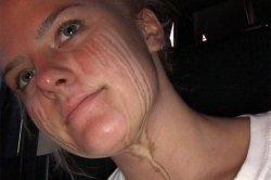 Злоупотребившая загаром девушка увековечила слезы на лице