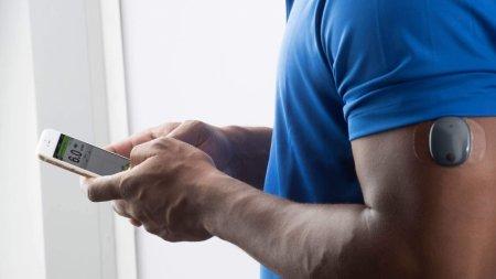 В США одобрили применение глюкометров-имплантатов